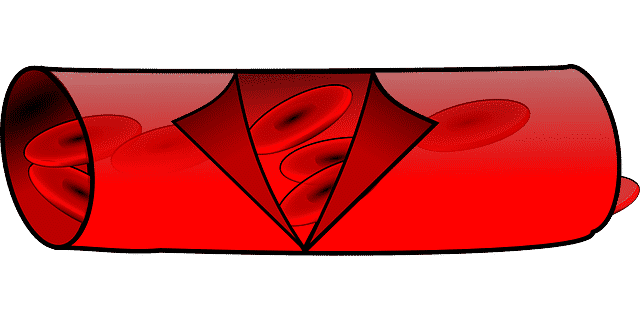 Ablagerung in Blutgefäßen